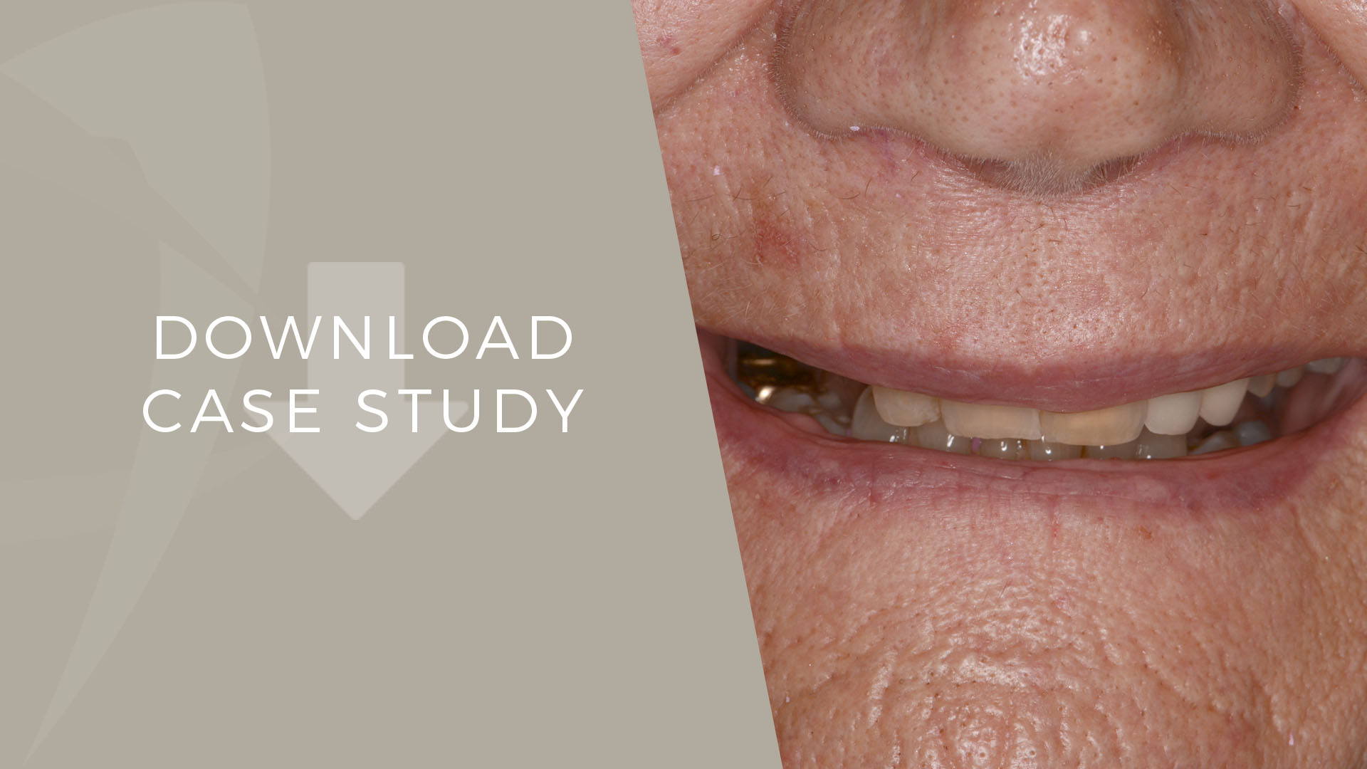 dental implant specialist case study
