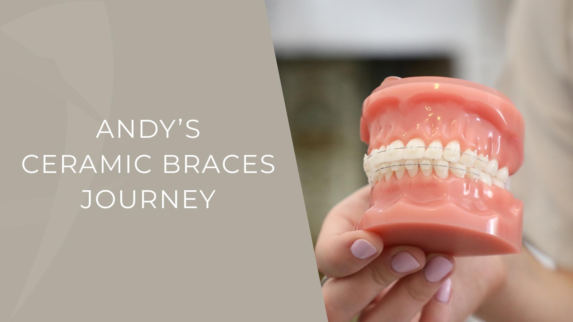 andy ceramic braces patient story