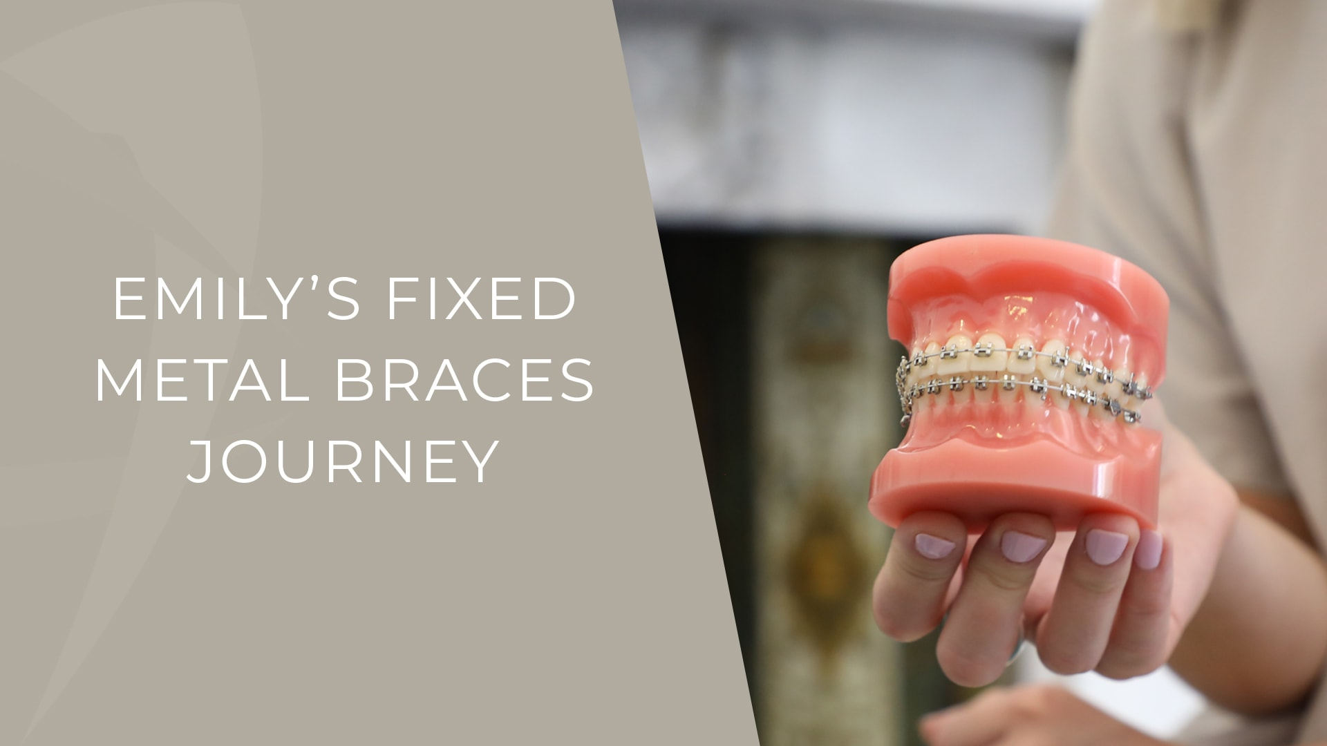fixed metal braces patient story review dr ciara ennis