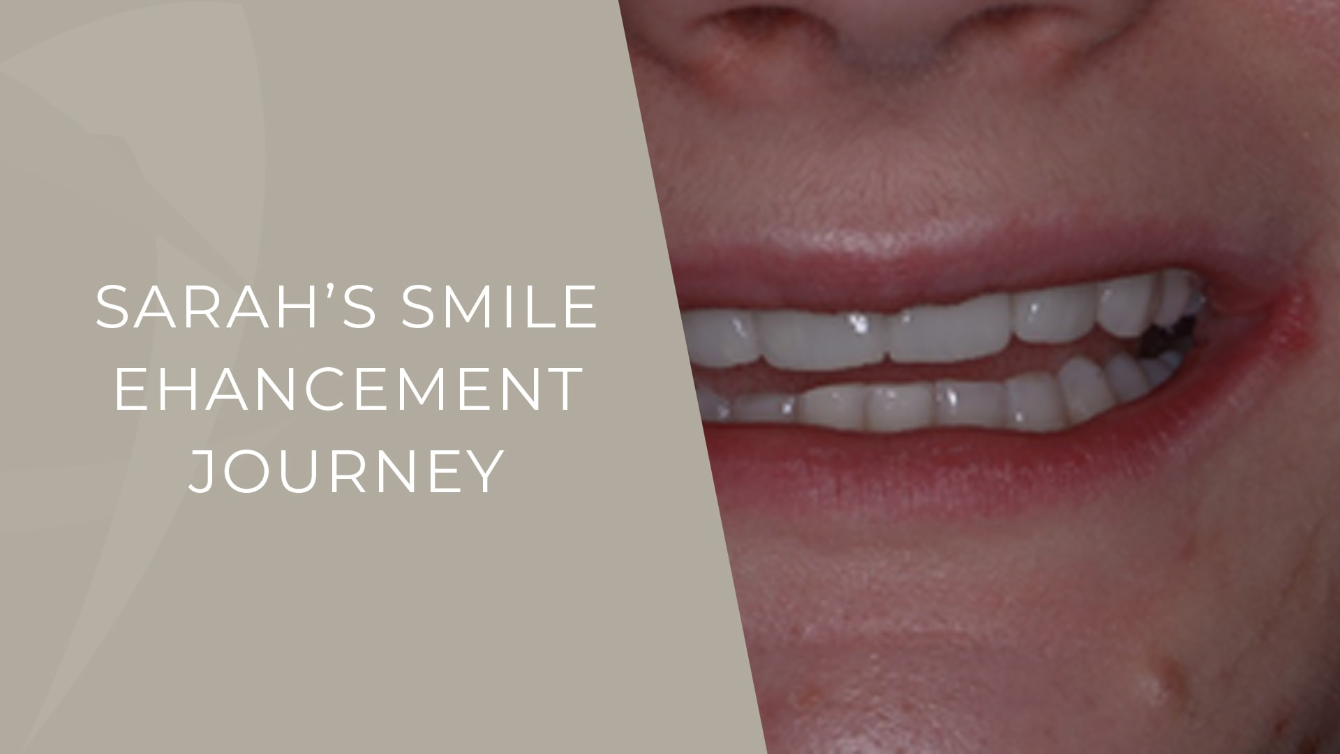 smile enhancement story london specialist dentist