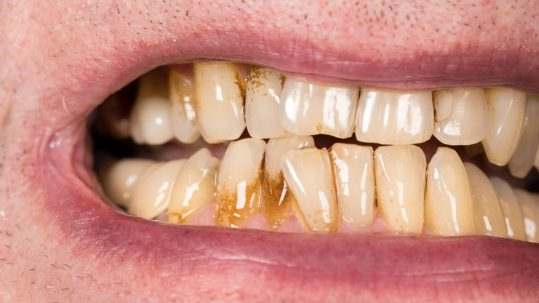 tooth stain treatment harley street dentist