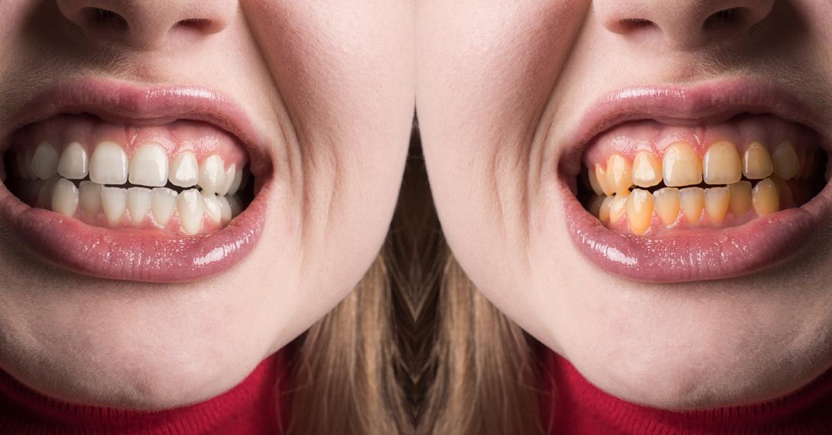 tooth whitening treatments london dental spcialist