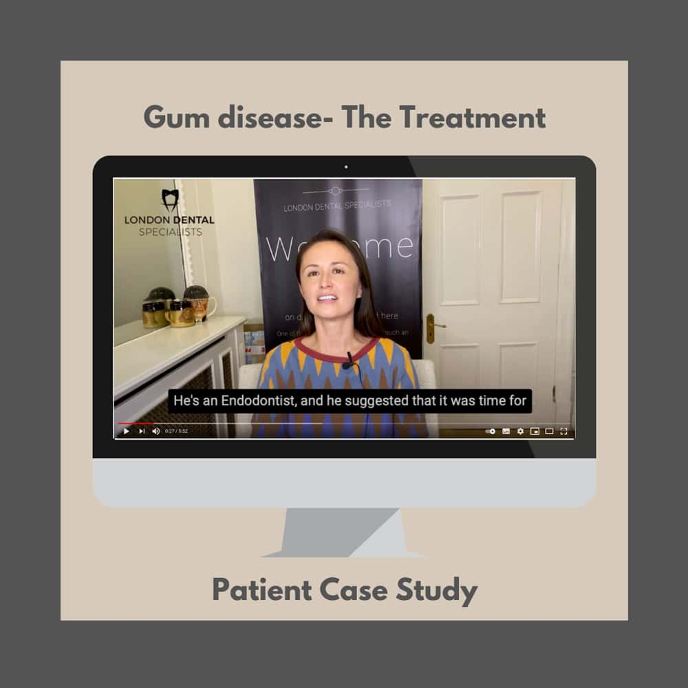 gum disease treatment testimonial harley street