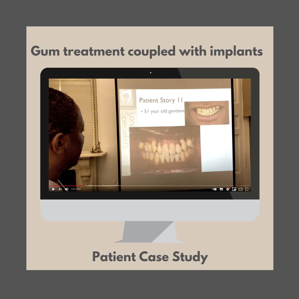 dr ope sodeinde restores patient tooth gum disease harley street