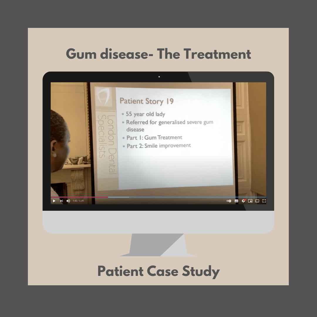 treatment gum disease london