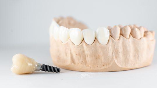 same day teeth gum specialist harley street